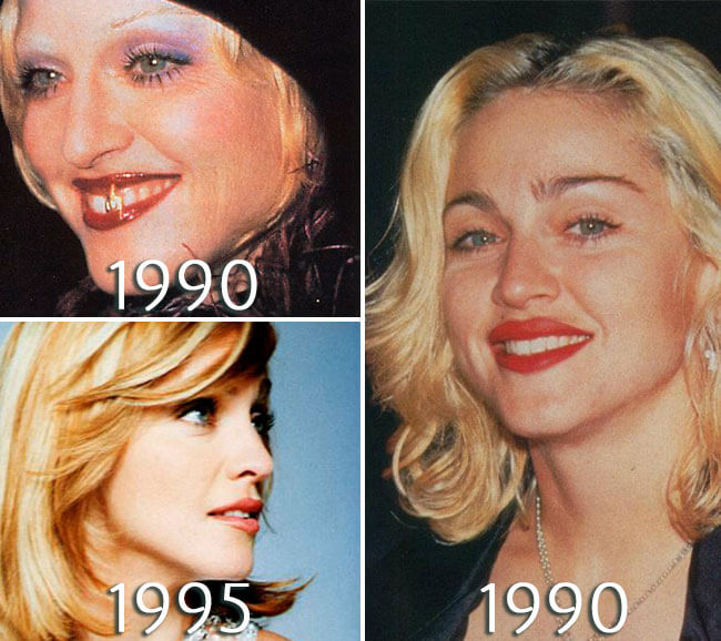 Madonna lips injections photo