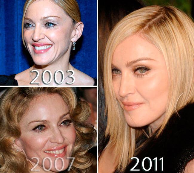 Madonna Eyelift photo