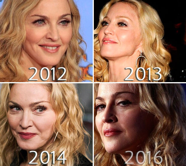 Madonna facelift photo