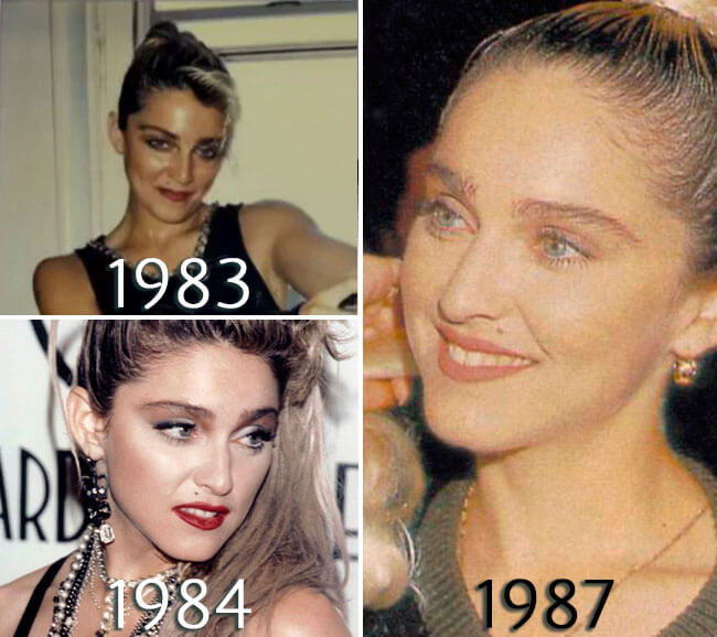 Madonna nosejob before and after photo