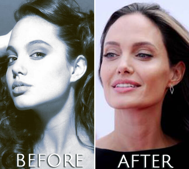 Angelina Jolie plastic surgery before and after photo