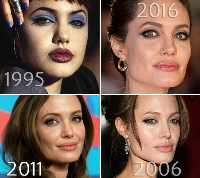 Angelina Jolie cheeks before and after photo
