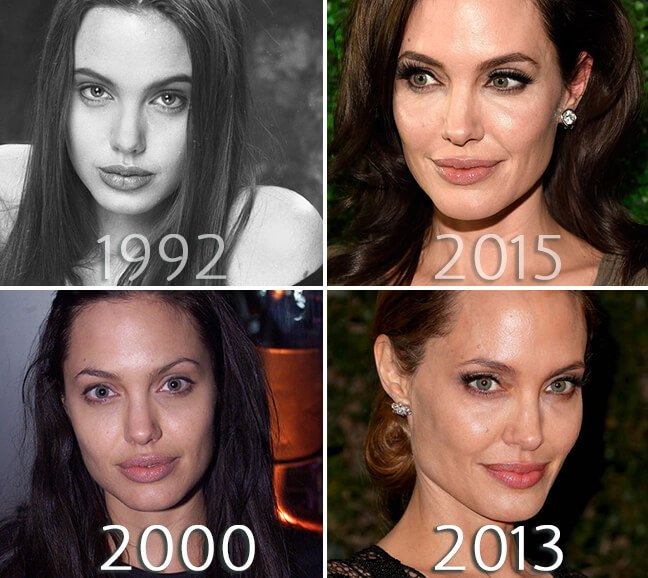 Angelina Jolie face before and after photo