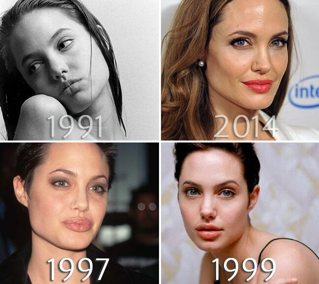 Angelina Jolie lips before and after photo