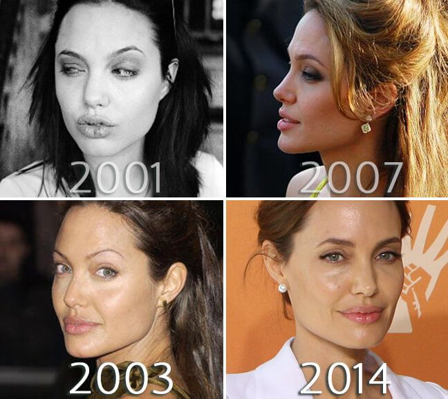 Angelina Jolie nose before and after photo