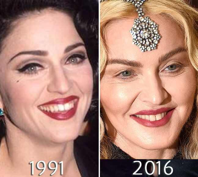Madonna before and after