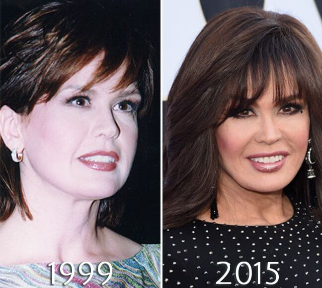 Marie Osmond cheek fillers photo