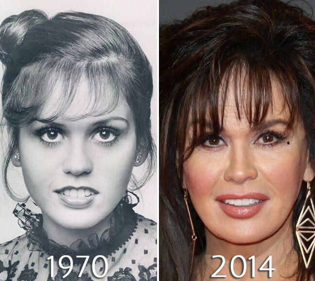 Marie Osmond Eyelid Lift photo