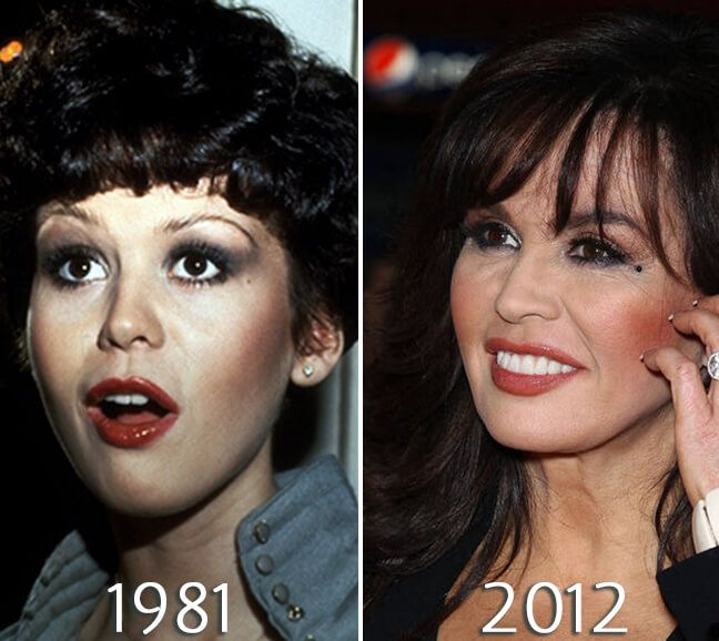 Marie Osmond jaw lift photo
