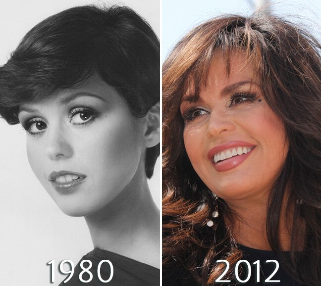 Marie Osmond lip injections photo