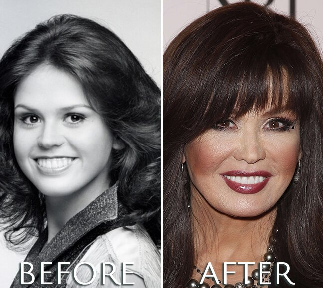 Marie Osmond plastic surgery transformation