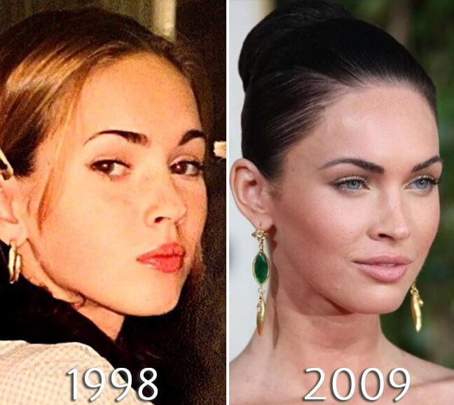 Megan fox eyelids before and after photo