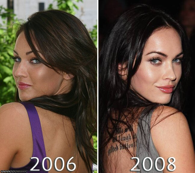 Megan Fox nose before and after photo