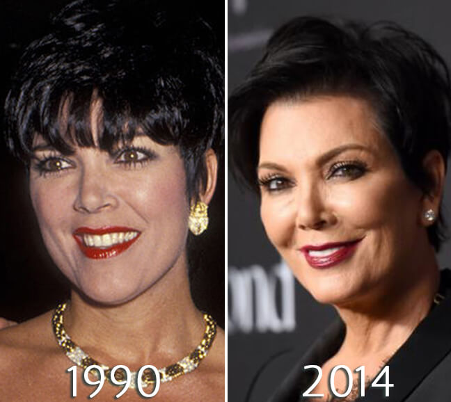Kris Jenner cheeks and chin before and after photo