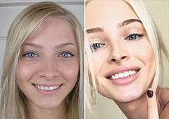 Alena Shishkova Before and After