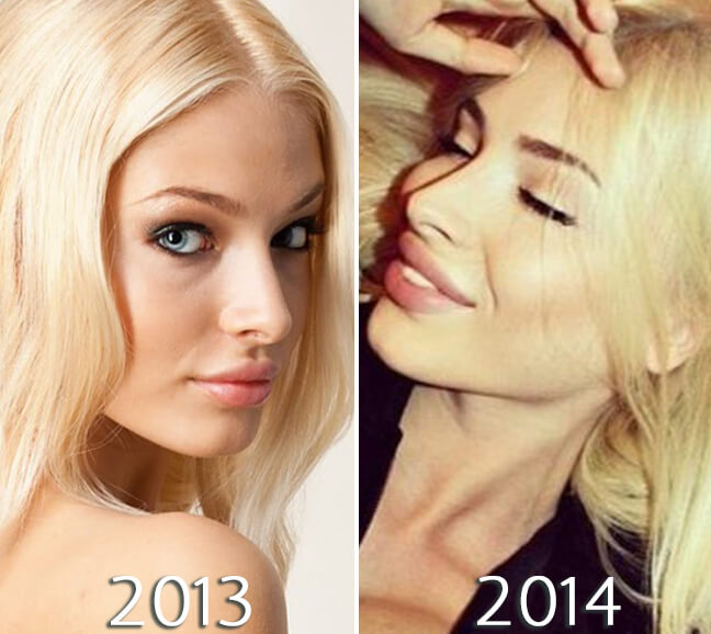 Alena Shishkova nose before and after