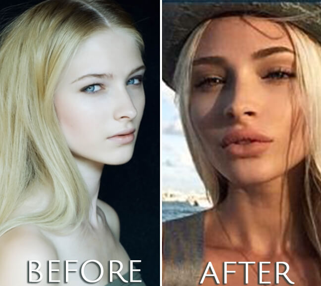 Alena Shishkova plastic surgery before and after photo
