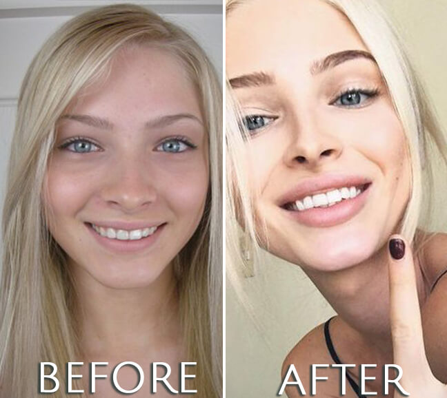 Alena Shishkova before and after plastic surgery