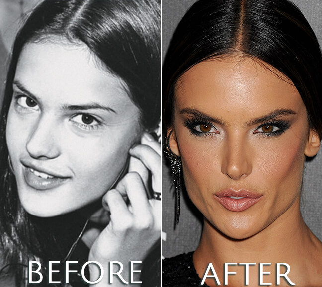 Alessandra Ambrosio before and after surgery