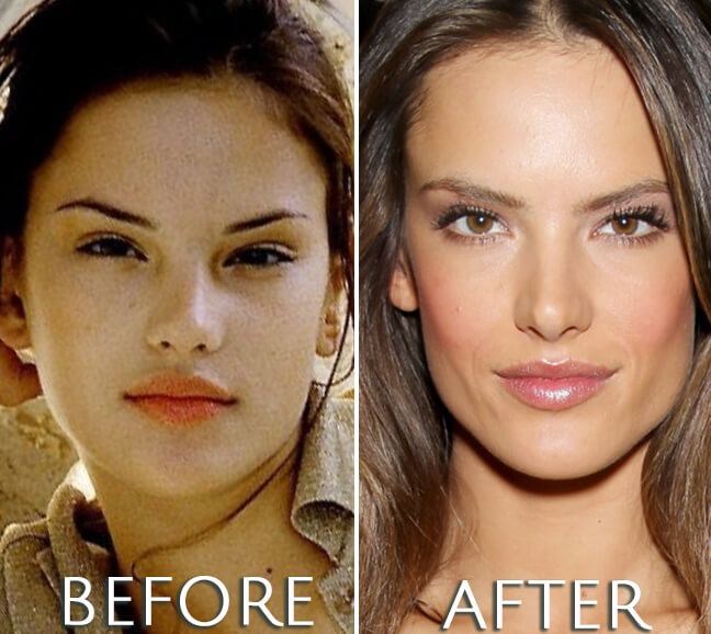 Alessandra Ambrosio before and after plastic surgery