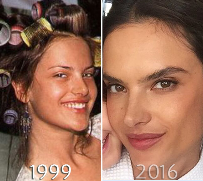 Alessandra Ambrosio nose before and after photo