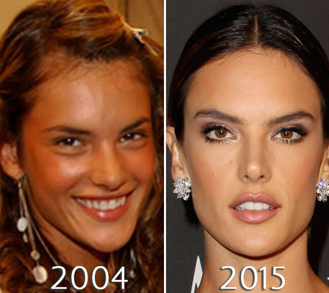 Alessandra Ambrosio skin before and after photo
