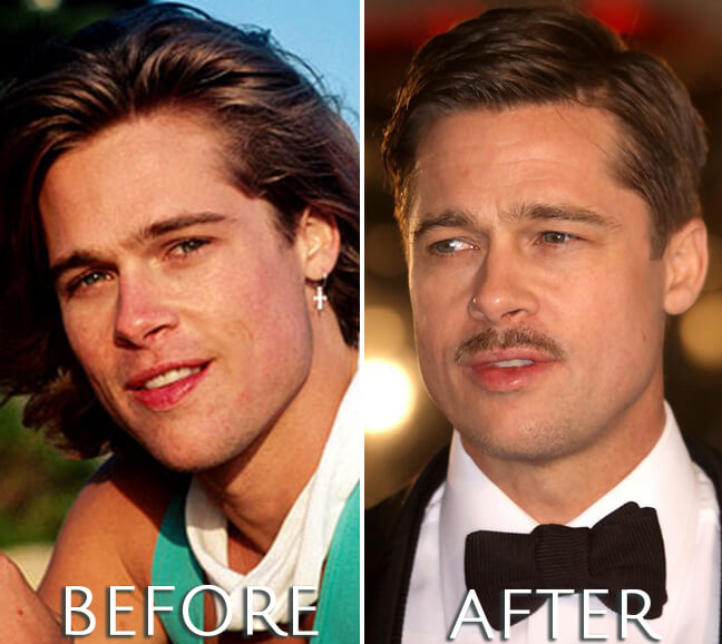 Brad Pitt before and after photo