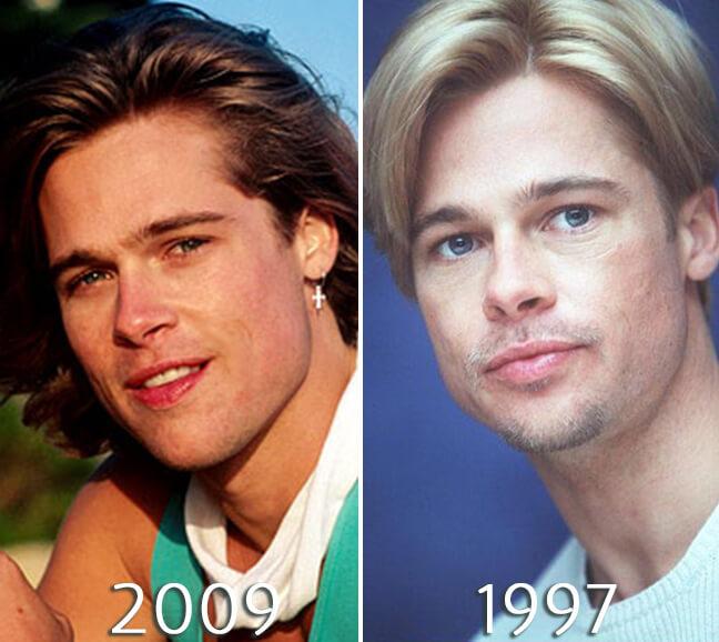 Brad Pitt eyelift