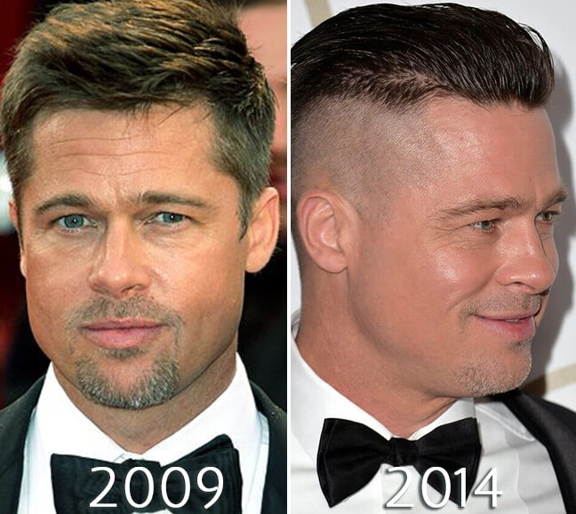Brad Pitt face before and after