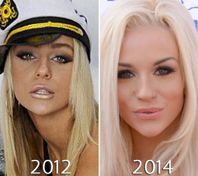 Courtney Stodden before and after cheeks