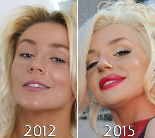 Courtney Stodden before and after lips