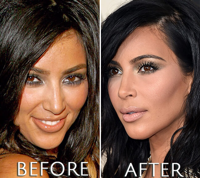 Kim Kardashian before and after photo