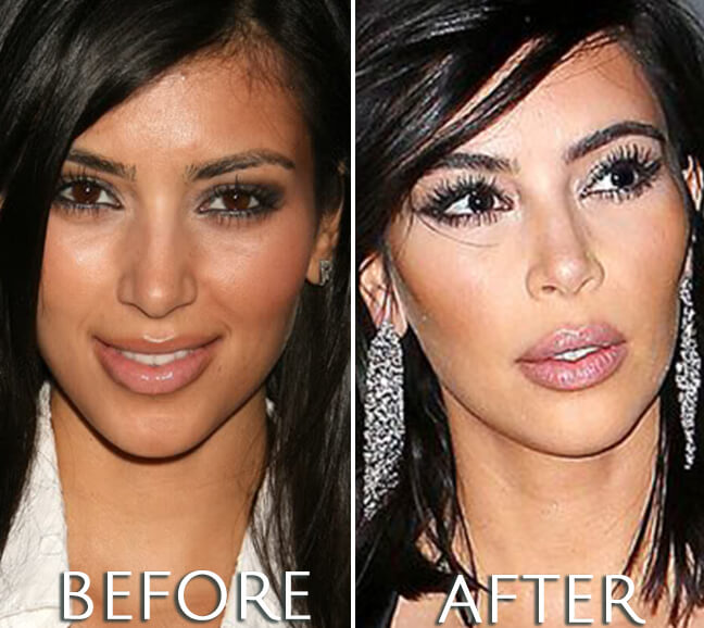 Kim Kardashian before and after plastic surgery