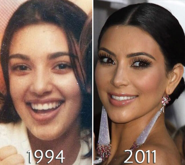Kim_Kardashian eyelift before and after