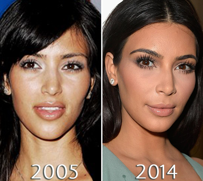 Kim Kardashian eyes before and after photos