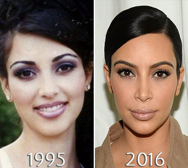 Kim Kardashian facelift before and after