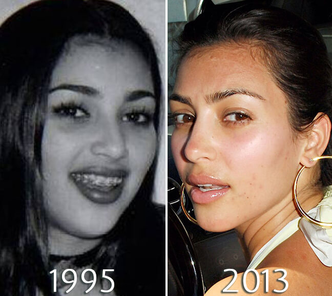 Kim Kardashian nosejob before and after