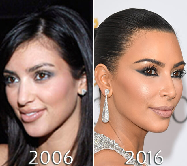 Kim Kardashian nose before and after photo