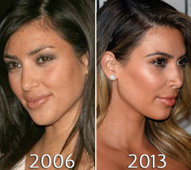 Kim Kardashian nose before and after