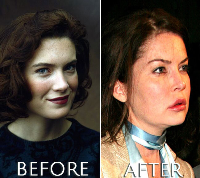 Lara Flynn Boyle before and after