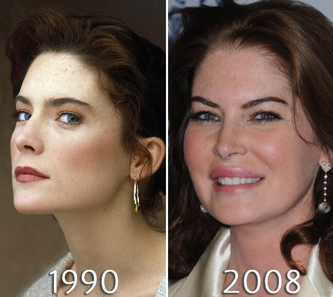 Lara Flynn Boyle before and after plastic surgery pictures