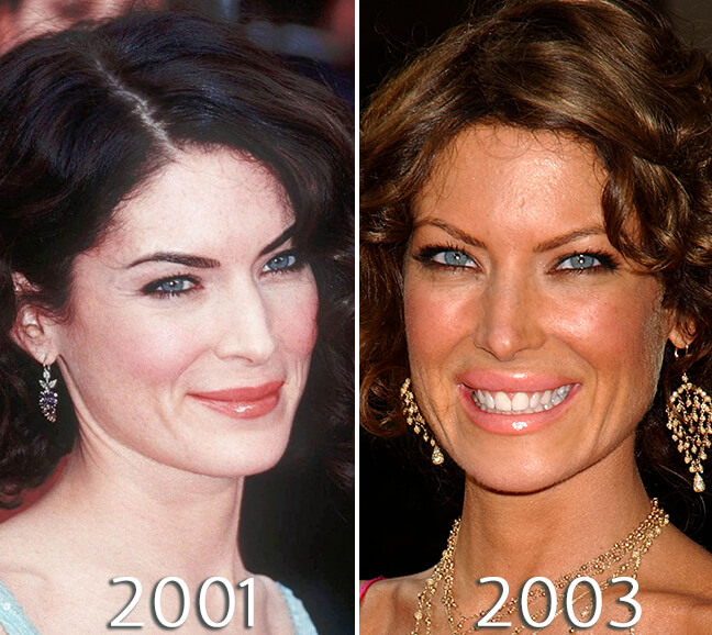 Lara Flynn Boyle nose job photos