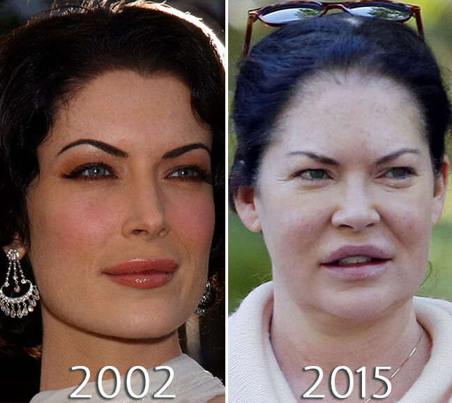 Lara Flynn Boyle photos before and after