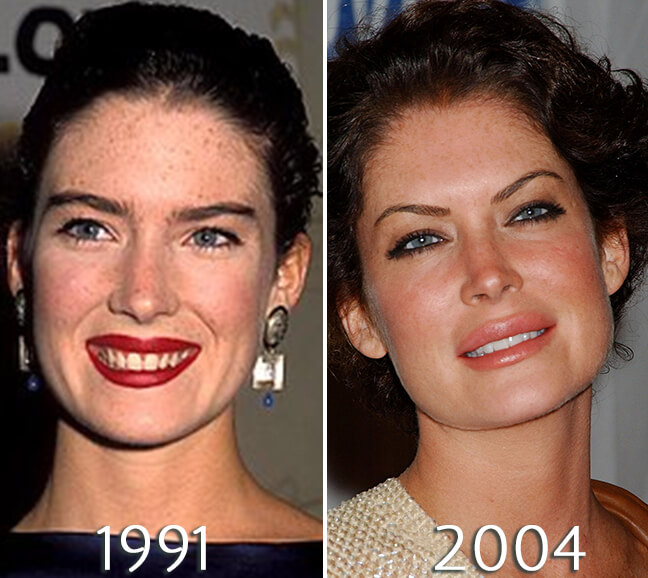 Lara Flynn Boyle before and after fillers and injections