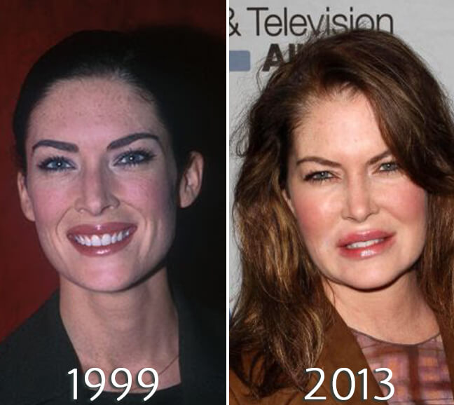 Lara Flynn Boyle before and after lips surgery