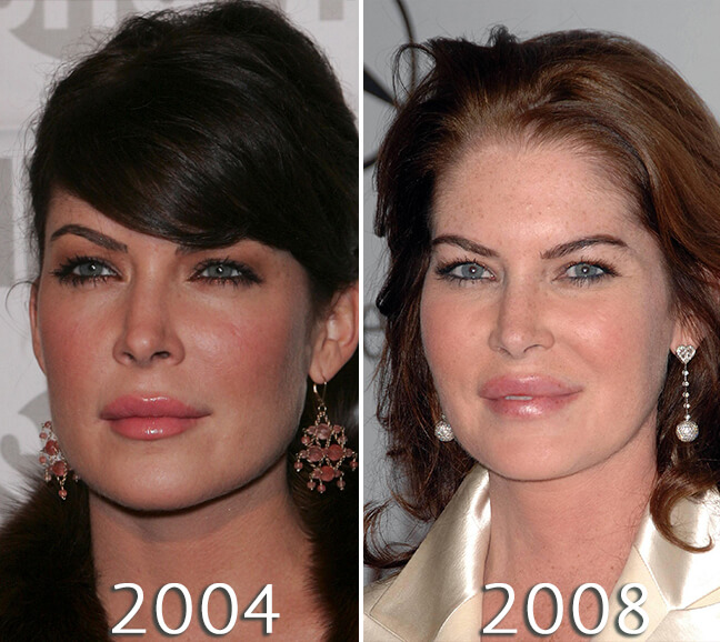 Lara Flynn Boyle lips before and after