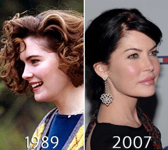 Lara Flynn Boyle before and after nose job