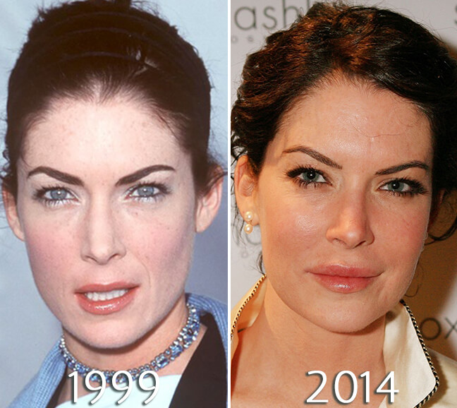Lara Flynn Boyle nose before and after plastic surgery
